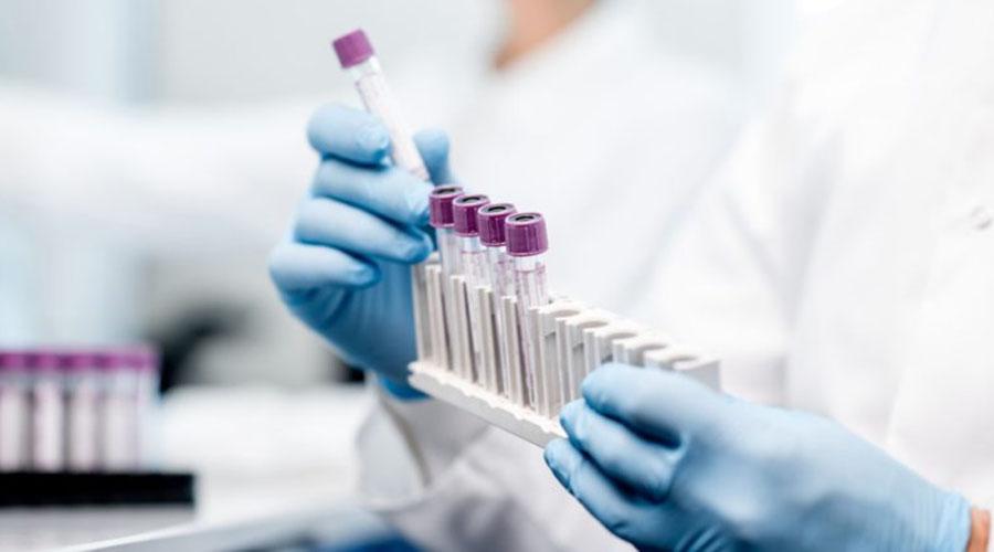 制药巨头测试IBM的区块链系统以改善临床试验